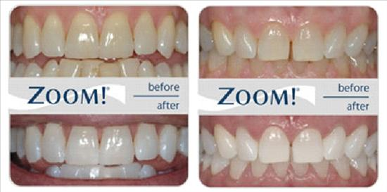 zoom-teeth-whitening-before-and-after-1
